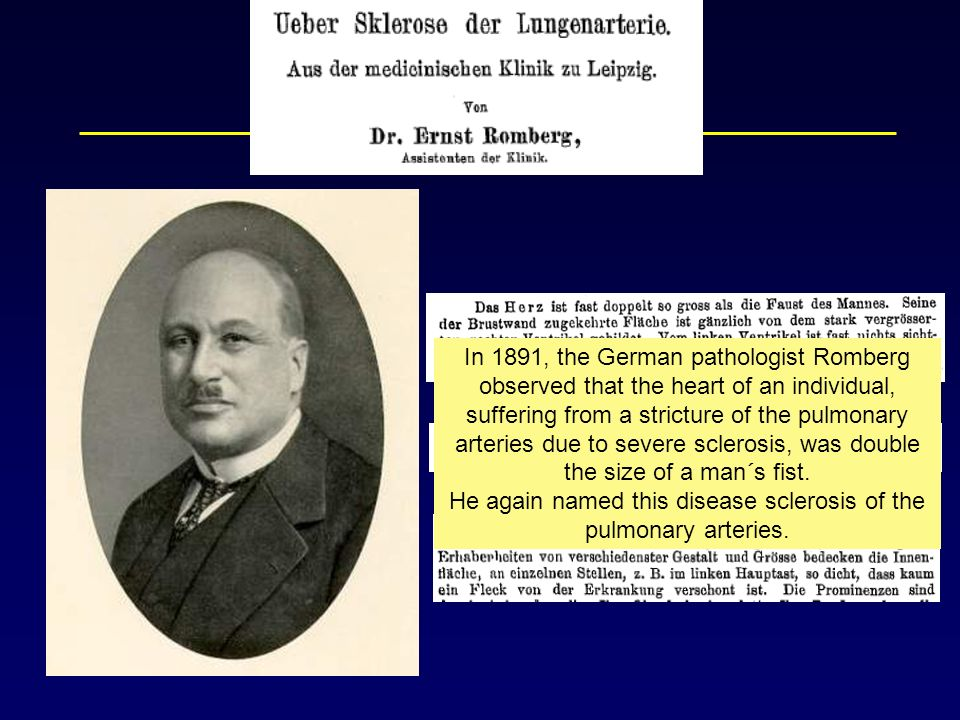 In 1891, the German pathologist Romberg observed that the heart of an individual, suffering from a stricture of the pulmonary arteries due to severe sclerosis, was double the size of a man´s fist.