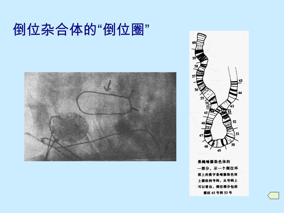 倒位杂合体的联会 A 倒位段较长,同源染色体在倒位段与正常段都进行联会,形成倒位圈; B 倒位段很短,只有正常区段联会,倒位段不联会; C 倒位段极长,只有倒位段联会,正常区段呈单股状态。