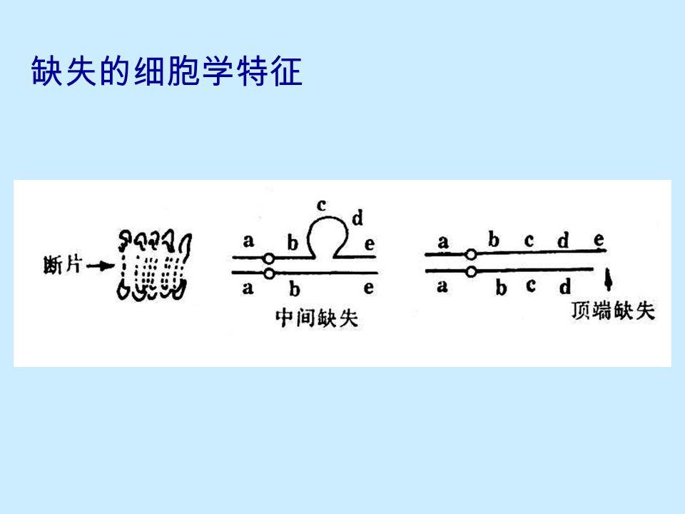 10.1.2 缺失的细胞学鉴定  无着丝粒断片 最初发生缺失的细胞,在分裂时可见无着丝粒断片  中间缺失:缺失环 ( 环形或瘤形突出 ) 中间缺失杂合体在偶线期和粗线期出现  顶端缺失:末端突出 顶端缺失杂合体在粗线期、双线期,交叉未完全端化的 二价体末端不等长  顶端缺失: 断裂 — 融合 — 桥 循环 断头与无着丝粒断片 (fragment) 双着丝粒染色体 (decentric chromosome)