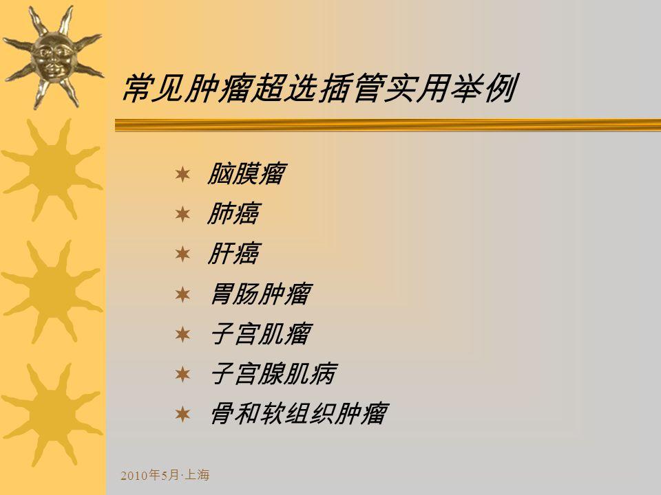 2010 年 5 月 · 上海 常见肿瘤超选插管实用举例  脑膜瘤  肺癌  肝癌  胃肠肿瘤  子宫肌瘤  子宫腺肌病  骨和软组织肿瘤