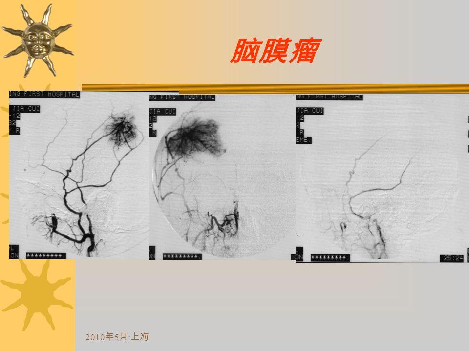 2010 年 5 月 · 上海 脑膜瘤