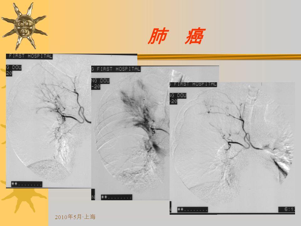 2010 年 5 月 · 上海 肺 癌