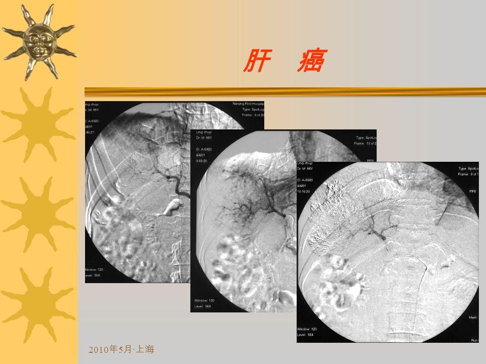 2010 年 5 月 · 上海 肝 癌