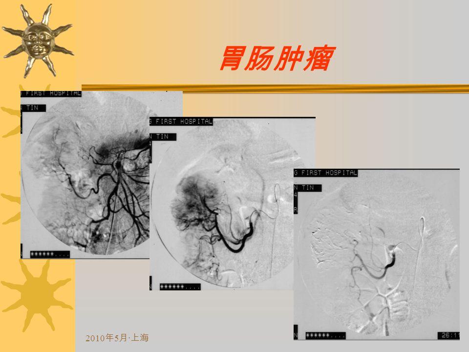 2010 年 5 月 · 上海 胃肠肿瘤