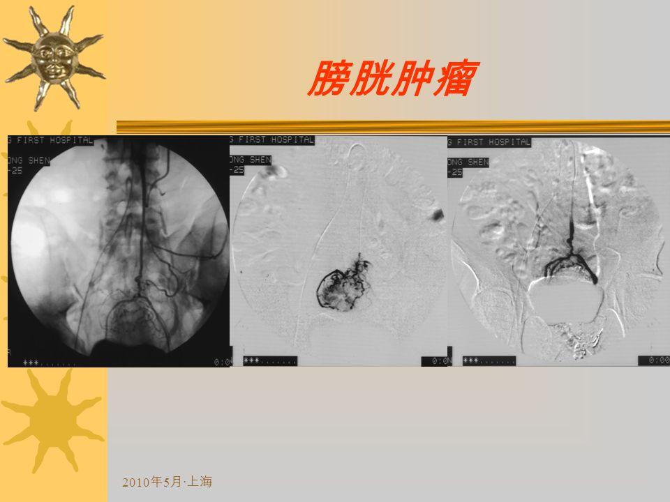 2010 年 5 月 · 上海 膀胱肿瘤