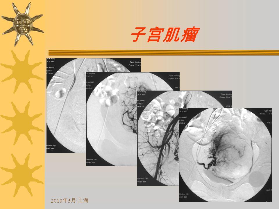 2010 年 5 月 · 上海 子宫肌瘤