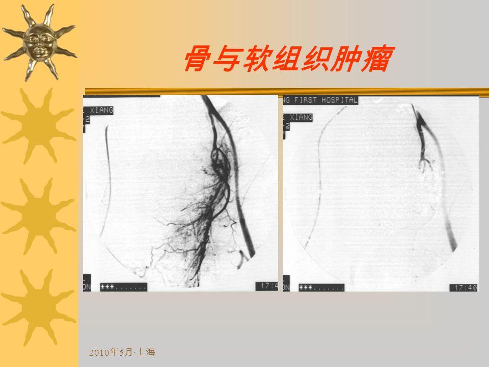 2010 年 5 月 · 上海 骨与软组织肿瘤