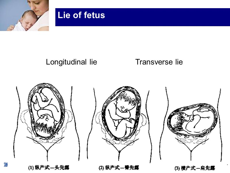 浙大医学院附属妇产科医院产科 Company LOG Lie of fetus Longitudinal lie Transverse lie