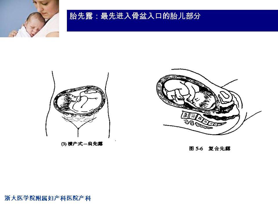 浙大医学院附属妇产科医院产科 Company LOG 胎先露:最先进入骨盆入口的胎儿部分