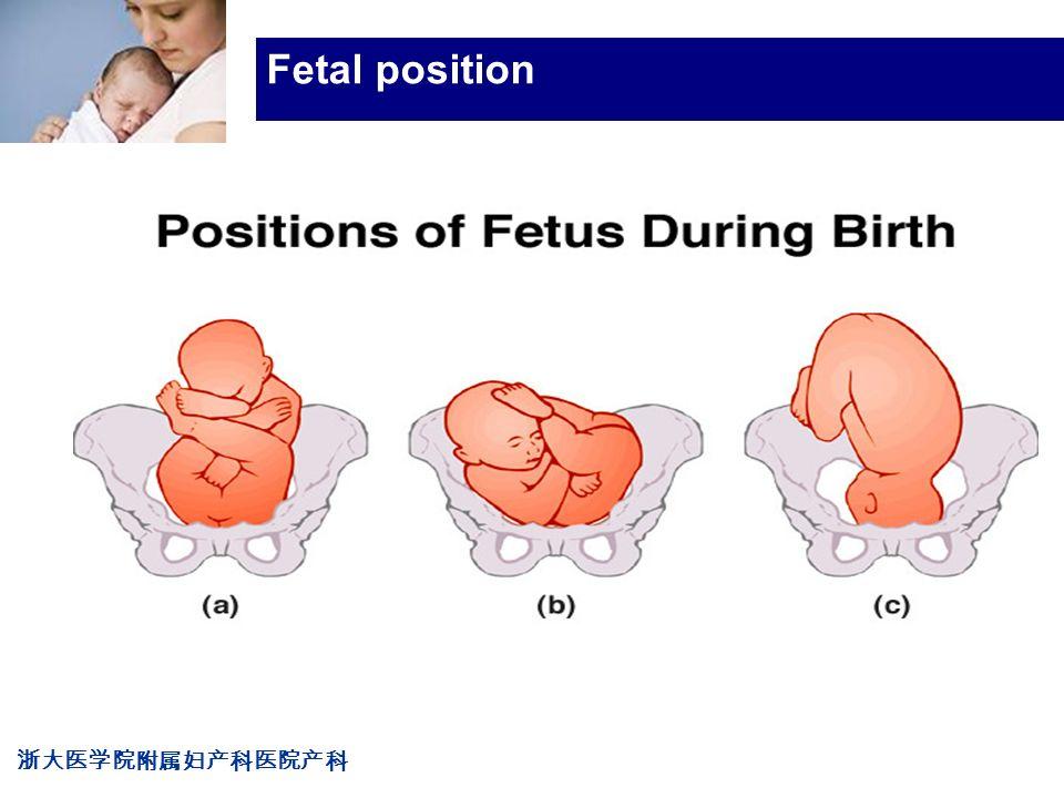 浙大医学院附属妇产科医院产科 Company LOG Fetal position