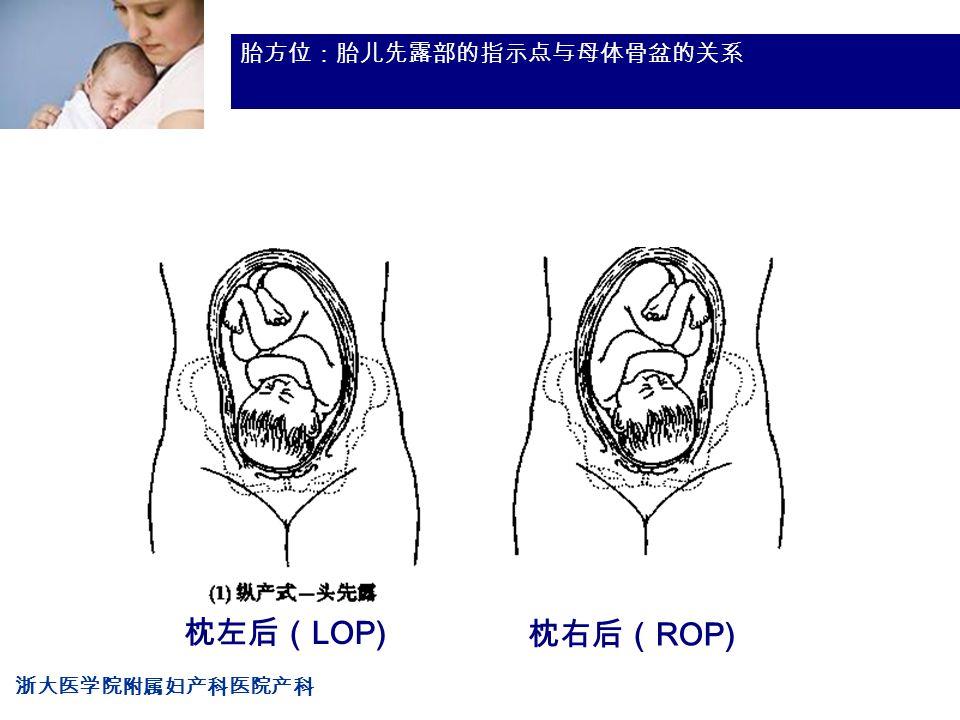 浙大医学院附属妇产科医院产科 Company LOG 胎方位:胎儿先露部的指示点与母体骨盆的关系 枕左后( LOP) 枕右后( ROP)