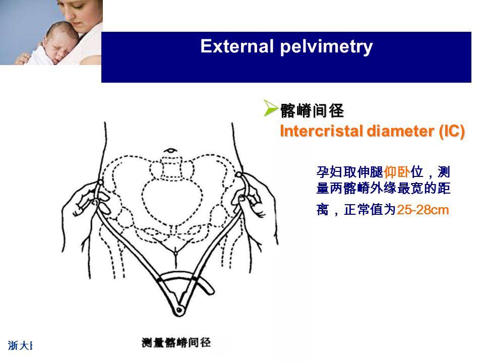 浙大医学院附属妇产科医院产科 Company LOG External pelvimetry 孕妇取伸腿仰卧位,测 量两髂嵴外缘最宽的距 离,正常值为 25-28cm  髂嵴间径 Intercristal diameter (IC)
