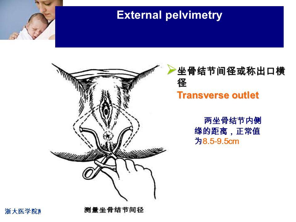 浙大医学院附属妇产科医院产科 Company LOG External pelvimetry 两坐骨结节内侧 缘的距离,正常值 为 8.5-9.5cm  坐骨结节间径或称出口横 径 Transverse outlet