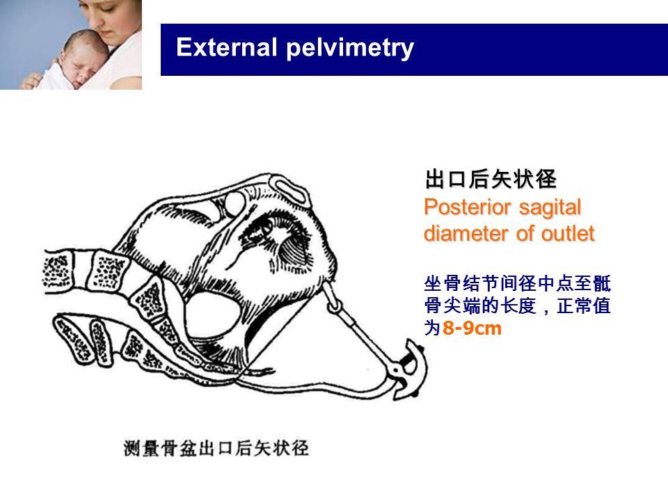 浙大医学院附属妇产科医院产科 Company LOG External pelvimetry 出口后矢状径 Posterior sagital diameter of outlet 坐骨结节间径中点至骶 骨尖端的长度,正常值 为 8-9cm