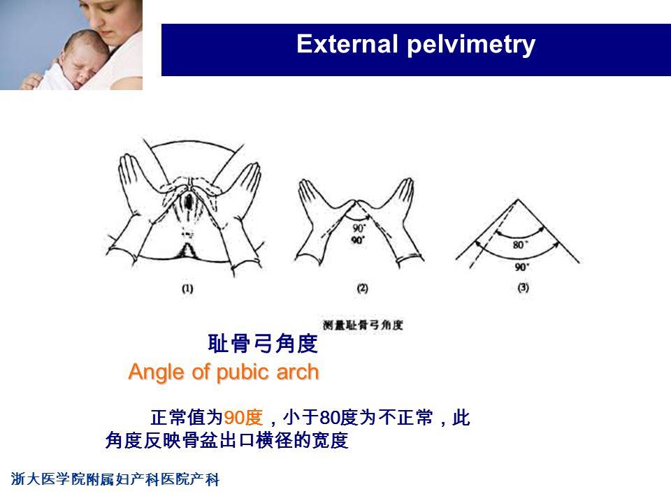 浙大医学院附属妇产科医院产科 Company LOG External pelvimetry 正常值为 90 度,小于 80 度为不正常,此 角度反映骨盆出口横径的宽度 Angle of pubic arch 耻骨弓角度 Angle of pubic arch