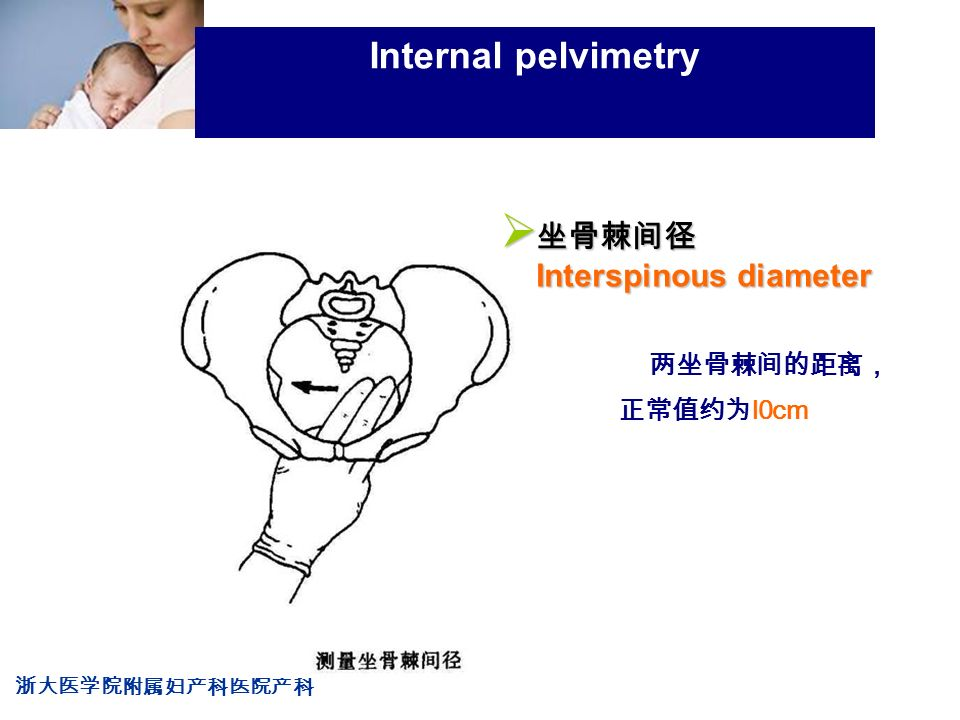 浙大医学院附属妇产科医院产科 Company LOG Internal pelvimetry 两坐骨棘间的距离, 正常值约为 l0cm  坐骨棘间径 Interspinous diameter