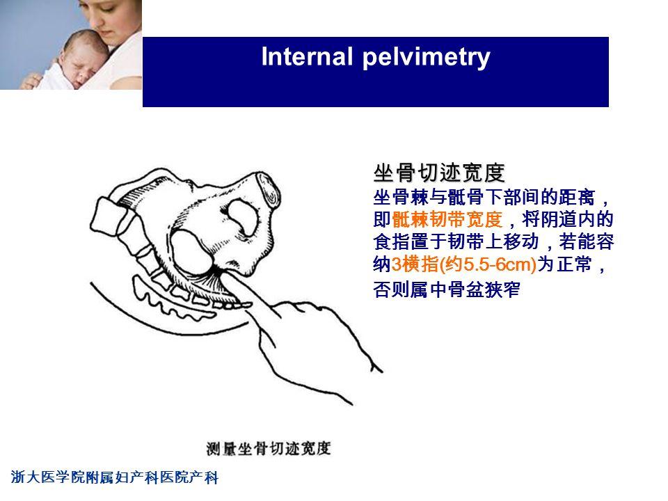 浙大医学院附属妇产科医院产科 Company LOG Internal pelvimetry 坐骨切迹宽度 坐骨棘与骶骨下部间的距离, 即骶棘韧带宽度,将阴道内的 食指置于韧带上移动,若能容 纳 3 横指 ( 约 5.5-6cm) 为正常, 否则属中骨盆狭窄