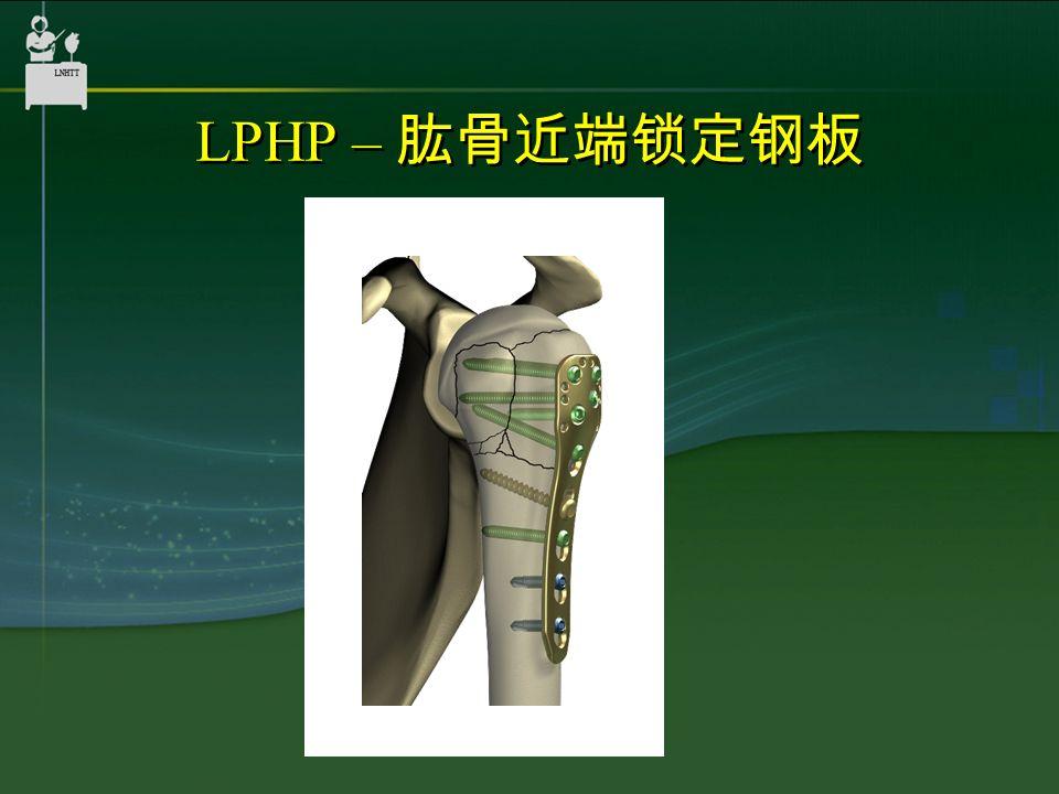LPHP – 肱骨近端锁定钢板