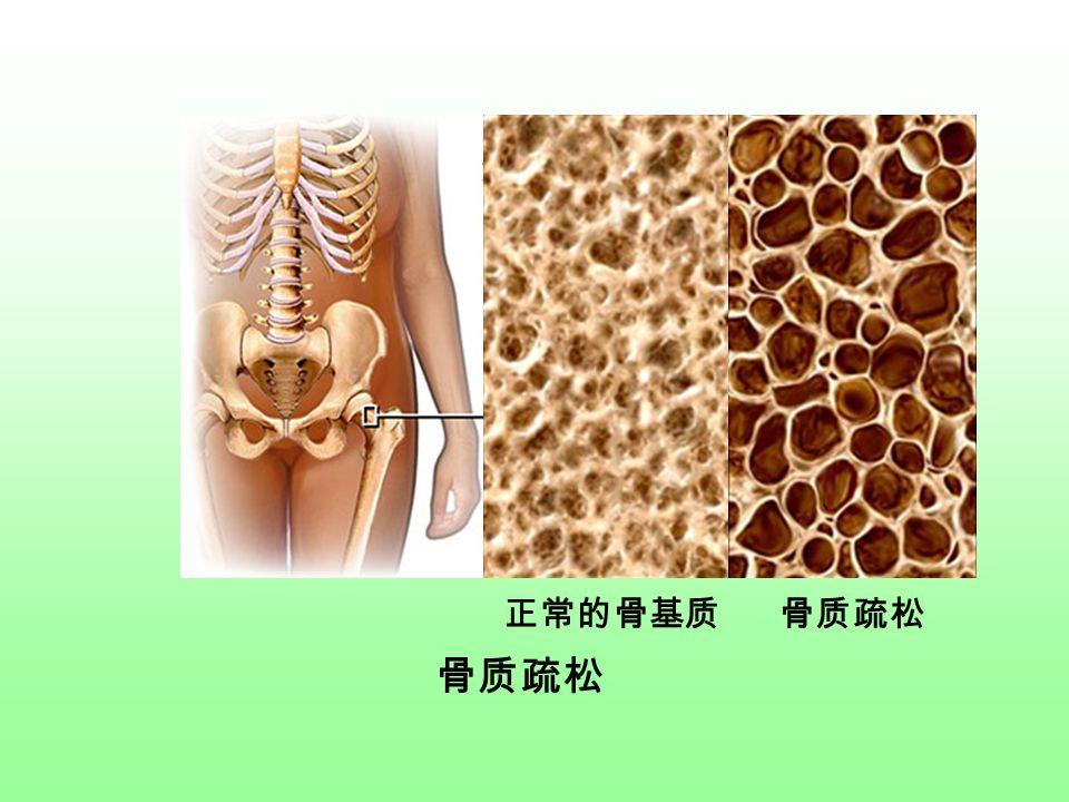 正常的骨基质 骨质疏松 骨质疏松