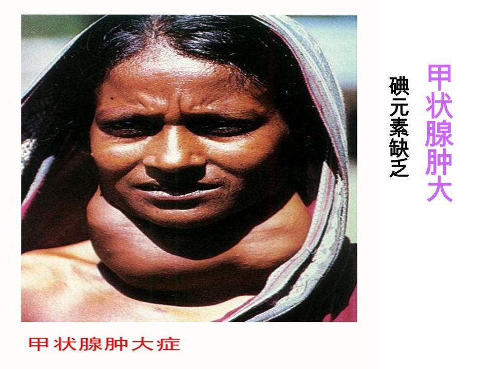 甲状腺肿 (俗称粗脖子病)