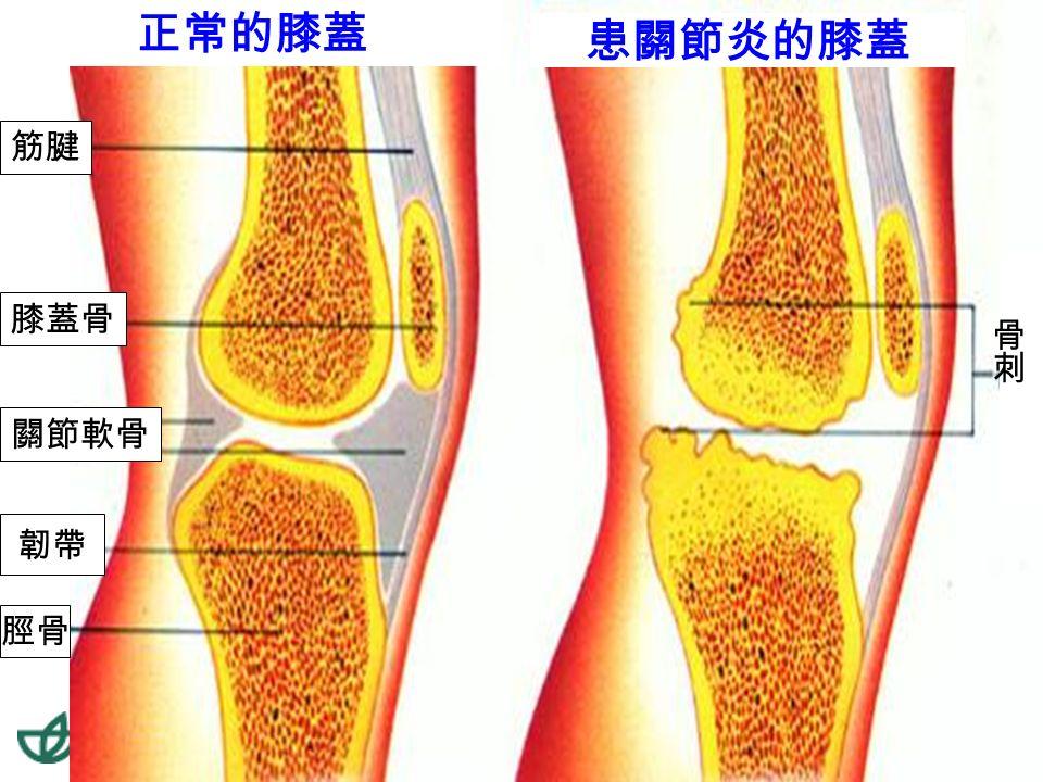 53退化性關節炎 45-55 歲以上人口 50% 以上 有退化性關節炎。 55-65 歲以上人口 80% 有退 化性關節炎。 關節嚴重磨損會造成骨刺