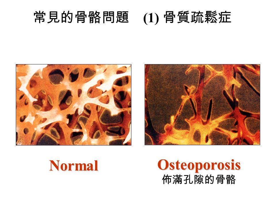 常見的骨骼問題 (1) 骨質疏鬆症Osteoporosis 佈滿孔隙的骨骼 Normal