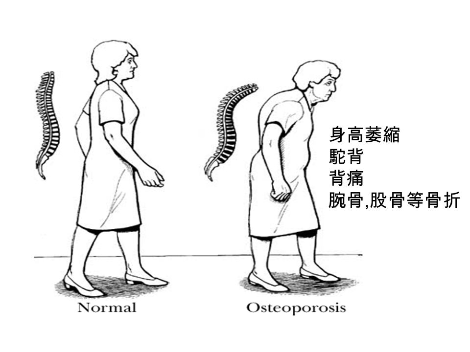 身高萎縮 駝背 背痛 腕骨, 股骨等骨折