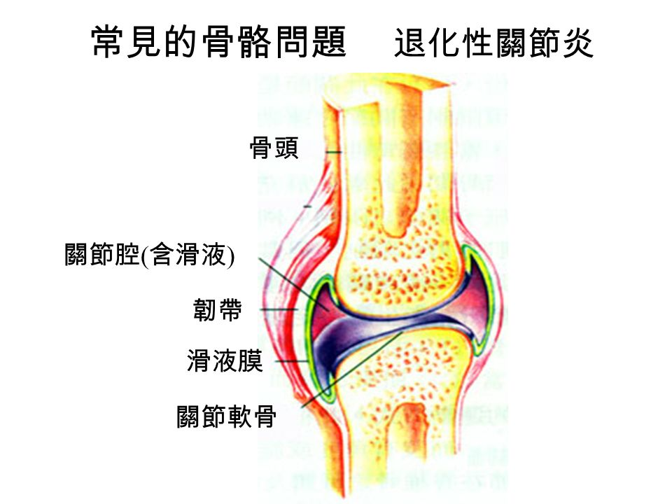 常見的骨骼問題 退化性關節炎 關節軟骨 滑液膜 韌帶 關節腔 ( 含滑液 ) 骨頭
