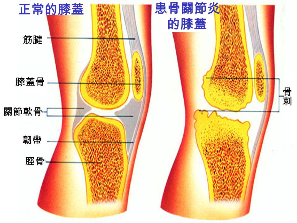 關節軟骨 韌帶 患骨關節炎 的膝蓋 正常的膝蓋 脛骨 膝蓋骨 筋腱