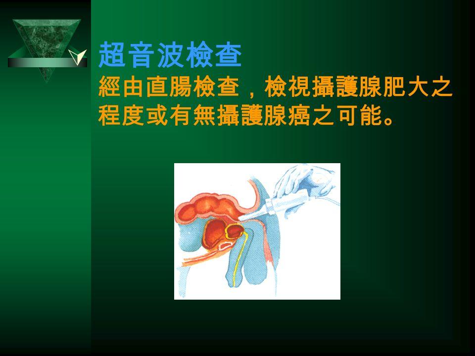  超音波檢查 經由直腸檢查,檢視攝護腺肥大之 程度或有無攝護腺癌之可能。