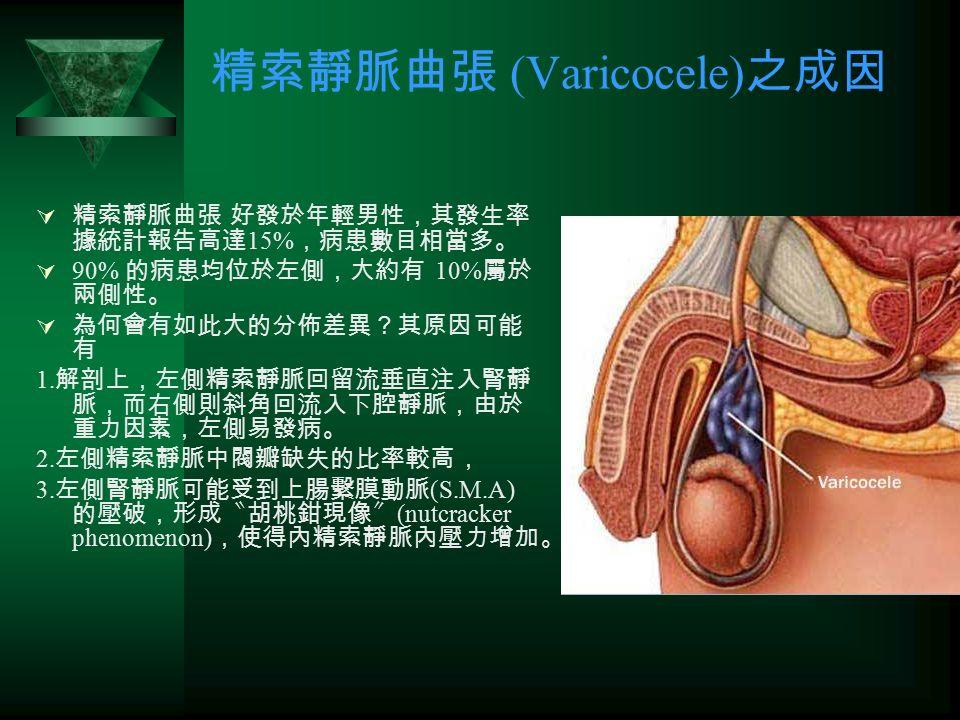精索靜脈曲張 (Varicocele) 之成因  精索靜脈曲張 好發於年輕男性,其發生率 據統計報告高達 15% ,病患數目相當多。  90% 的病患均位於左側,大約有 10% 屬於 兩側性。  為何會有如此大的分佈差異?其原因可能 有 1.
