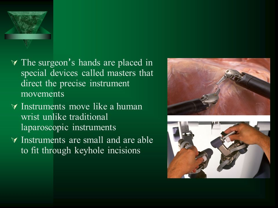  The surgeon ' s hands are placed in special devices called masters that direct the precise instrument movements  Instruments move like a human wrist unlike traditional laparoscopic instruments  Instruments are small and are able to fit through keyhole incisions