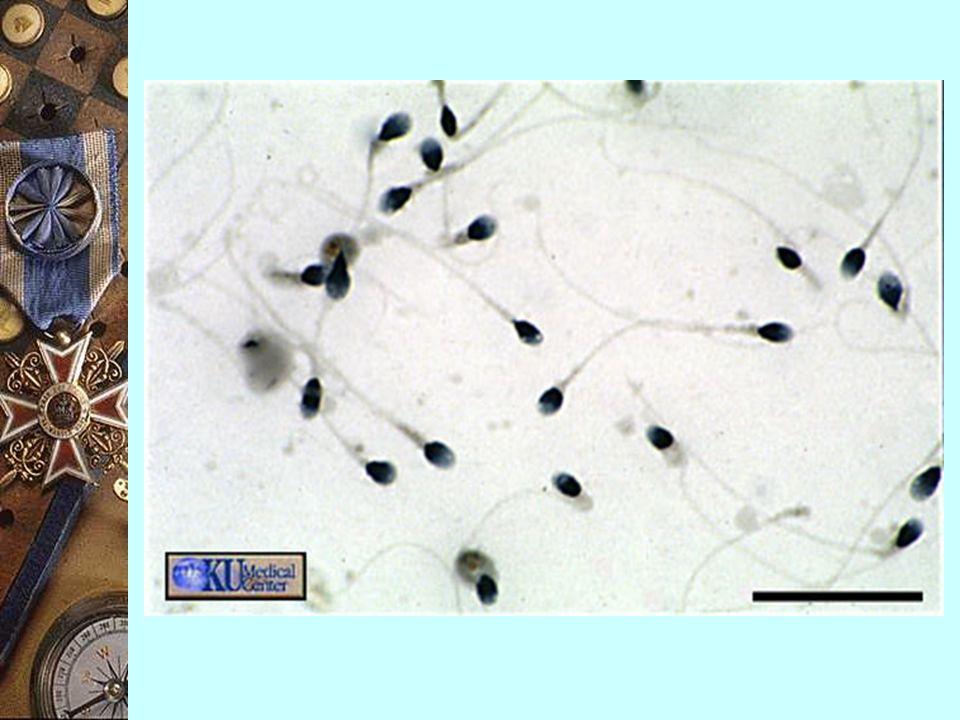精子 (sperm / spermatozoan)  單倍體的雄性配子,由精巢 / 睪丸產生  體積 : 細小  形狀 : ~ 蝌蚪  特徵 : 可自由游動  構造 : 1) 頭部 (head) 2) 頸部 (neck) 3) 中段 (middle piece) 4) 主段 (principal piece) 5) 尾段 (end piece)
