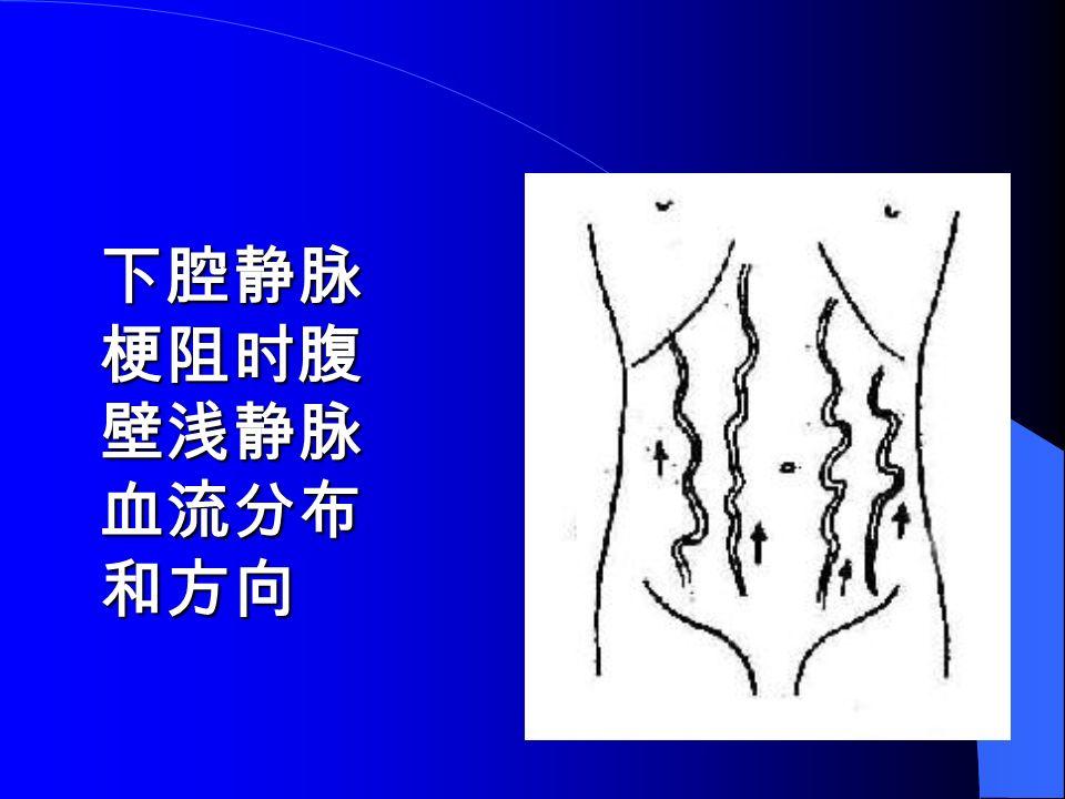 下腔静脉 梗阻时腹 壁浅静脉 血流分布 和方向