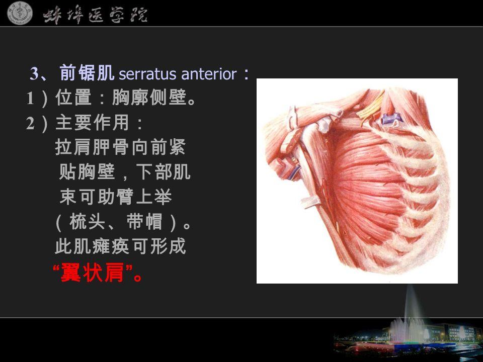 3 、前锯肌 serratus anterior : 1 )位置:胸廓侧壁。 2 )主要作用: 拉肩胛骨向前紧 贴胸壁,下部肌 束可助臂上举 (梳头、带帽)。 此肌瘫痪可形成 翼状肩 。