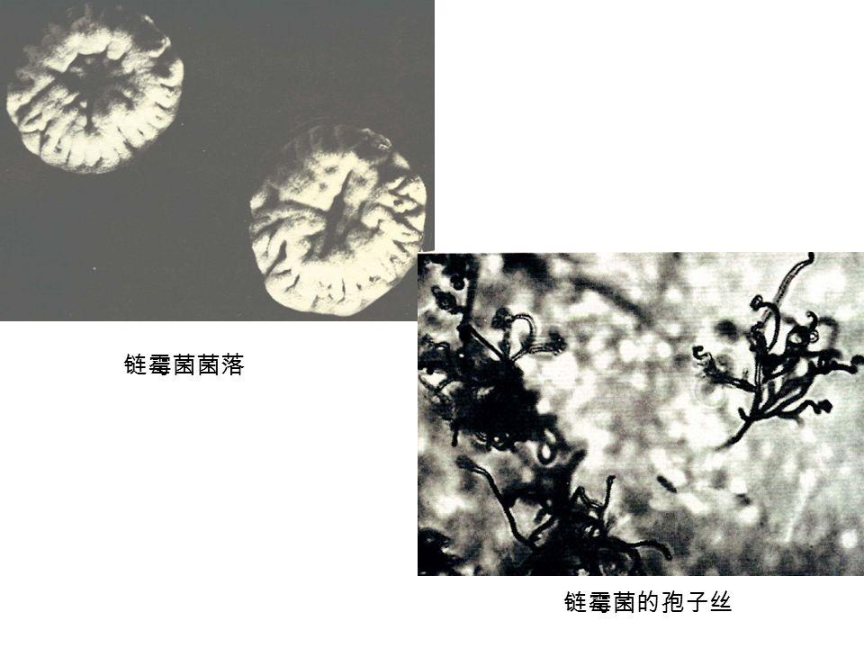 链霉菌菌落 链霉菌的孢子丝