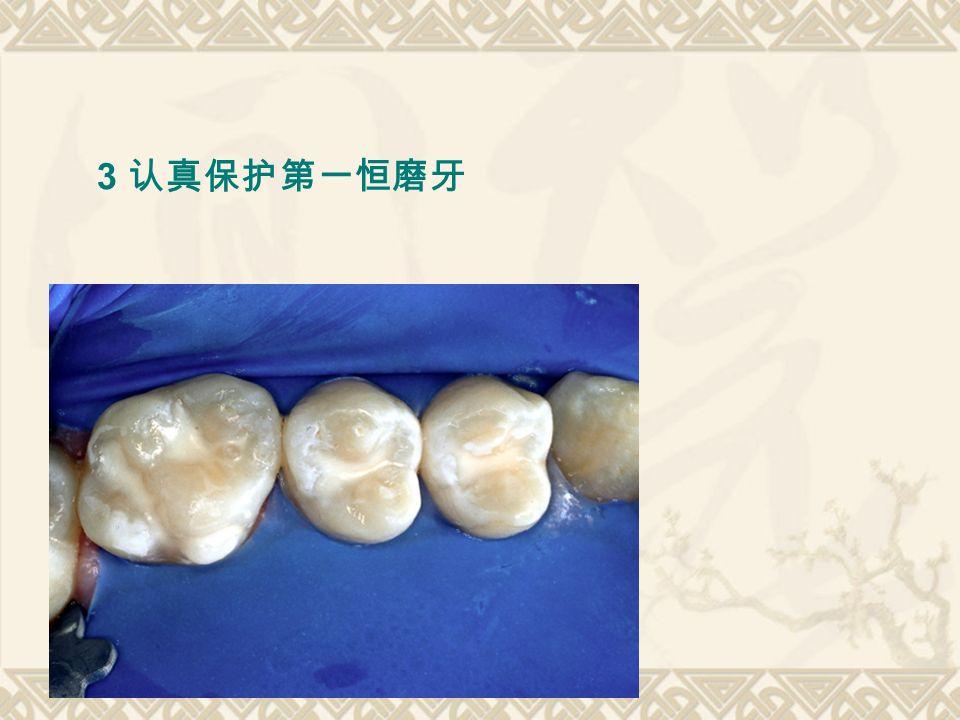 3 认真保护第一恒磨牙