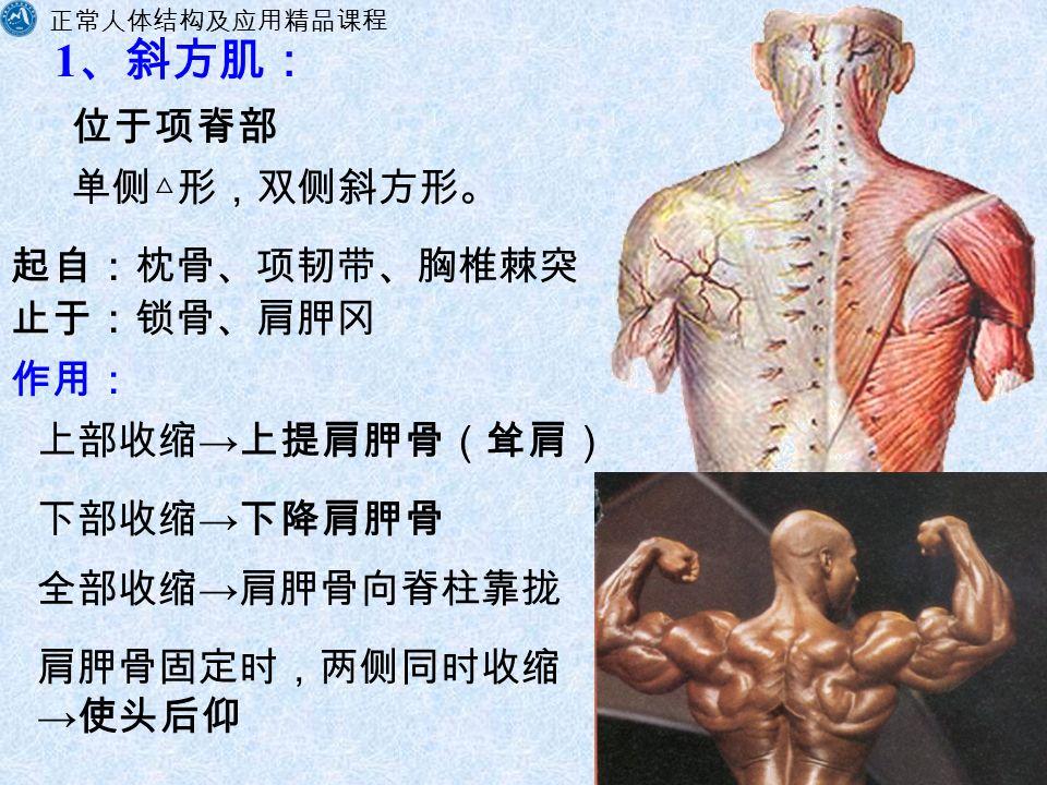 正常人体结构及应用精品课程 福建卫生职业技术学院解剖教研室 1 、斜方肌: 单侧△形,双侧斜方形。 起自:枕骨、项韧带、胸椎棘突 作用: 上部收缩 → 上提肩胛骨(耸肩) 下部收缩 → 下降肩胛骨 全部收缩 → 肩胛骨向脊柱靠拢 肩胛骨固定时,两侧同时收缩 → 使头后仰 位于项脊部 止于:锁骨、肩胛冈