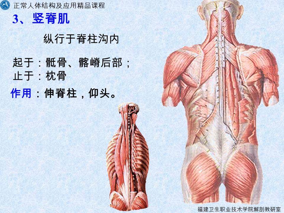 正常人体结构及应用精品课程 福建卫生职业技术学院解剖教研室 3 、竖脊肌 纵行于脊柱沟内 起于:骶骨、髂嵴后部; 止于:枕骨 作用:伸脊柱,仰头。