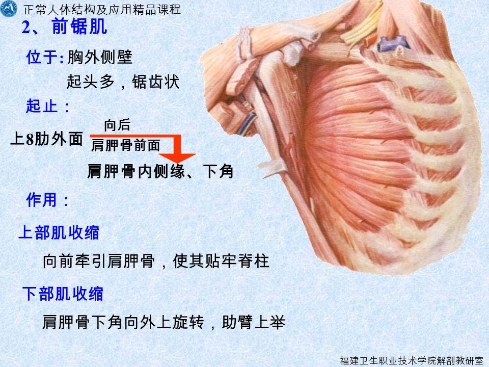 正常人体结构及应用精品课程 福建卫生职业技术学院解剖教研室 2 、前锯肌 起止: 上 8 肋外面 肩胛骨前面 肩胛骨内侧缘、下角 作用: 上部肌收缩 下部肌收缩 位于 : 胸外侧壁 向后 起头多,锯齿状 向前牵引肩胛骨,使其贴牢脊柱 肩胛骨下角向外上旋转,助臂上举