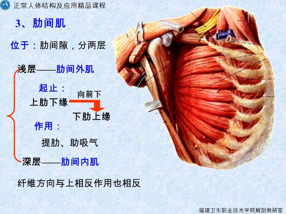 正常人体结构及应用精品课程 福建卫生职业技术学院解剖教研室 3 、肋间肌 提肋、助吸气 深层 —— 肋间内肌 位于:肋间隙,分两层 作用: 纤维方向与上相反作用也相反 浅层 —— 肋间外肌 向前下 下肋上缘 上肋下缘 起止:
