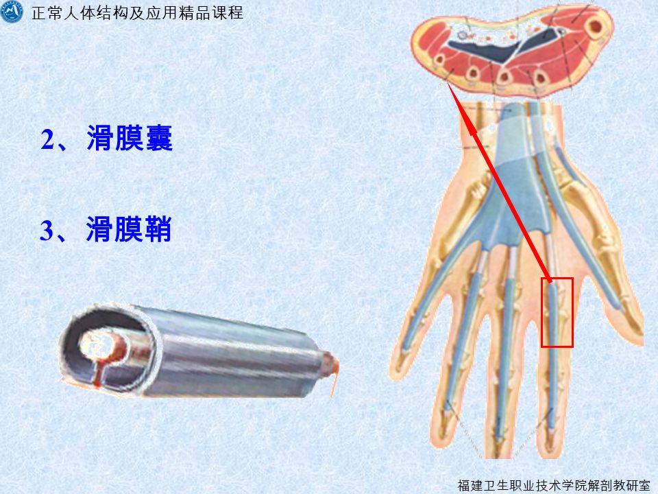 正常人体结构及应用精品课程 福建卫生职业技术学院解剖教研室 2 、滑膜囊 3 、滑膜鞘