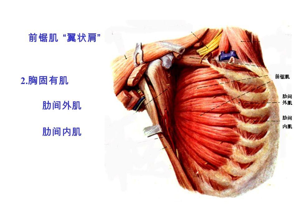 前锯肌 翼状肩 肋间外肌 2. 胸固有肌 肋间 外肌 肋间内肌 前锯肌