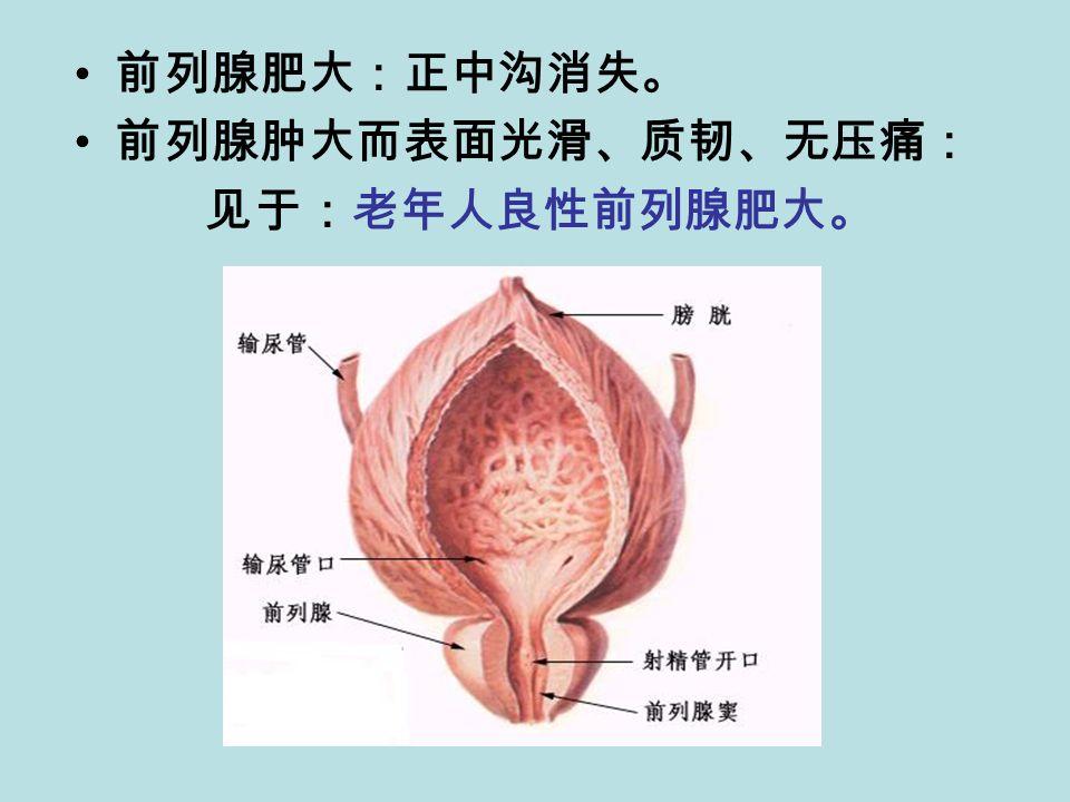 前列腺肥大:正中沟消失。 前列腺肿大而表面光滑、质韧、无压痛: 见于:老年人良性前列腺肥大。