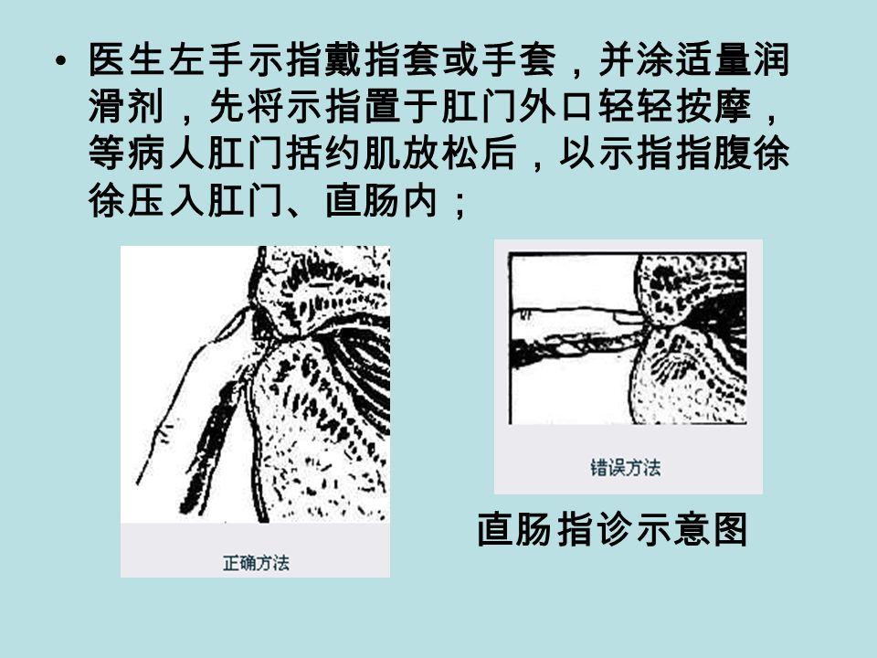 医生左手示指戴指套或手套,并涂适量润 滑剂,先将示指置于肛门外口轻轻按摩, 等病人肛门括约肌放松后,以示指指腹徐 徐压入肛门、直肠内; 直肠指诊示意图