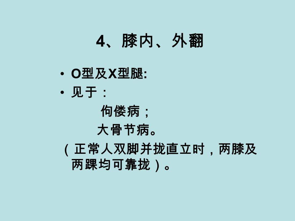 4 、膝内、外翻 O 型及 X 型腿 : 见于: 佝偻病; 大骨节病。 (正常人双脚并拢直立时,两膝及 两踝均可靠拢)。