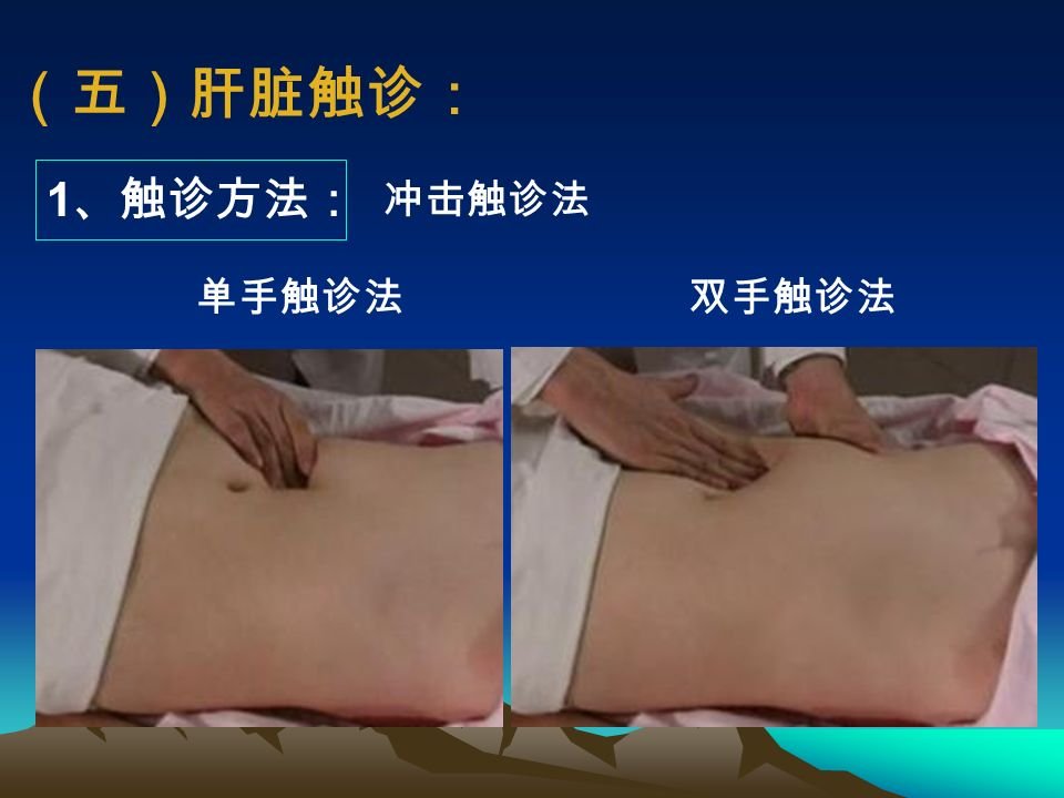(四)肿块 1 、异常包块 ,包括: 1 )肿大的脏器(实质性或空腔脏器); 2 )肿瘤(实质性或囊性); 3 )炎症性包块; 4 )肿大的淋巴结等。 2 、 触及腹部包块时应注意: 部位 ,大小, 形态 、表面与边缘, 质地与硬度,压痛 ,活动度,搏动, 其他(与邻近脏器、皮肤和腹壁的关系)
