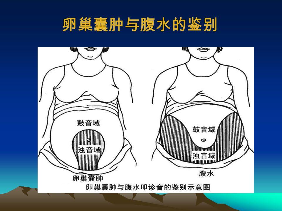 (二)腹水的叩诊 移动性浊音: 1 、检查方法:变换体位,浊音区范围明显改变 2 、意义:腹腔内游离腹水在 1000ml (中等量)以上 3 、腹水的常见病因:肝硬化、腹膜炎、心功能不全、 肾病综合征、腹膜癌等。