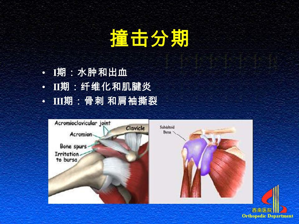 Orthopedic Department 撞击分期 I 期:水肿和出血 II 期:纤维化和肌腱炎 III 期:骨刺 和肩袖撕裂
