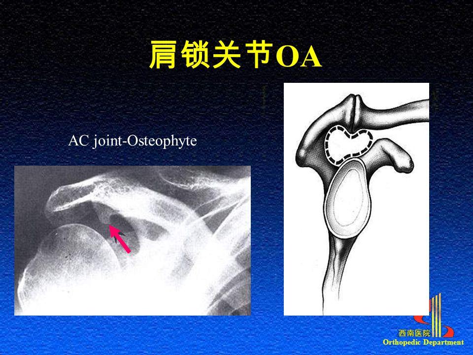 肩锁关节 OA AC joint-Osteophyte